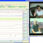 Synchronize physiology data and video