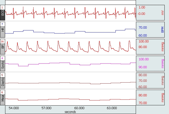 AcqKnowledge blood pressure and ECG data
