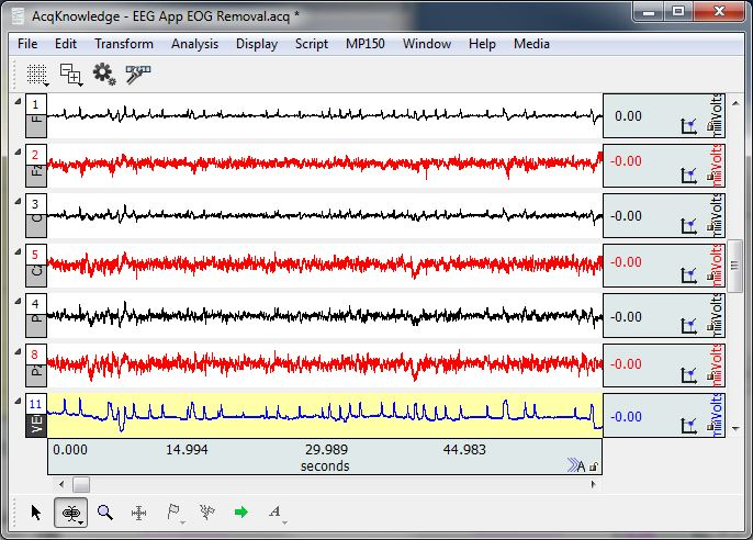 analyzing an electroencephalography report eeg Eeg subscribe unsubscribe638 readers report eeg results analysis please (selfeeg) submitted 4 months ago by spartylove 2 comments.
