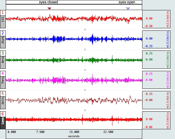EEG Frequency Bands