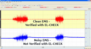 EMG data recording improves with EL-CHECK
