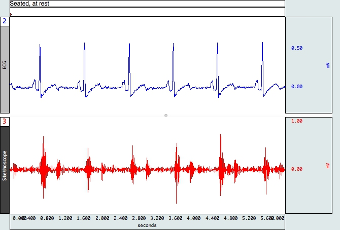 Heart sounds data
