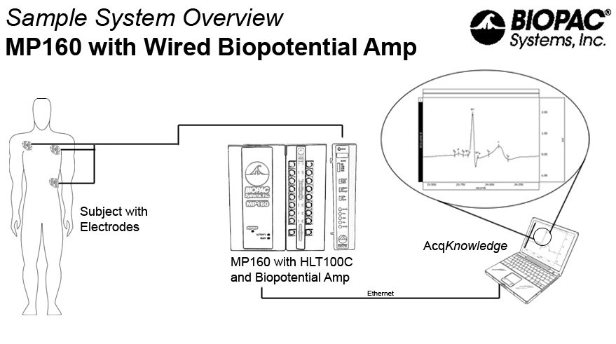 Mp160 With Biopotential And Electrodes: Xdcr Transducer Wiring Diagram At Outingpk.com