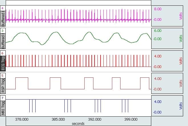 Lab report on blood pressure