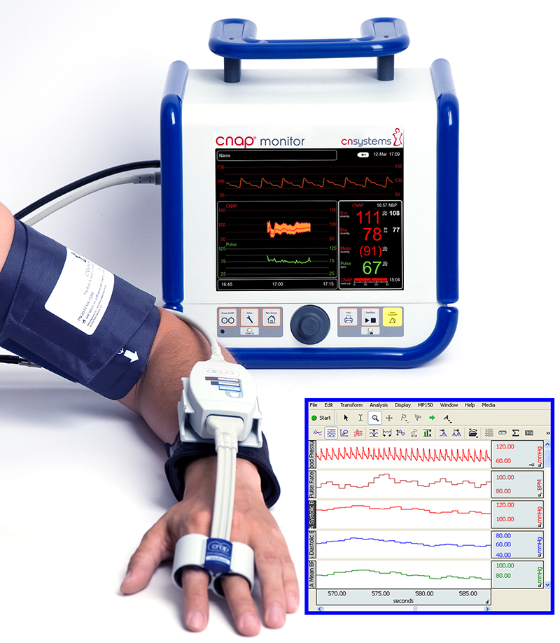 Noninvasive Blood Pressure Amplifier - CNSystems CNAP Monitor 500