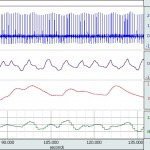 AcqKnowledge ECG, Respiration, EDA (GSR), heart rate data
