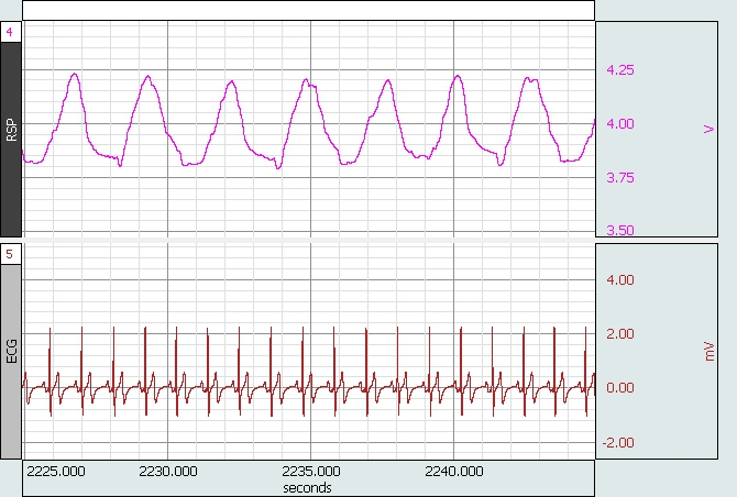 BioNomadix Logger data ECG and respiration