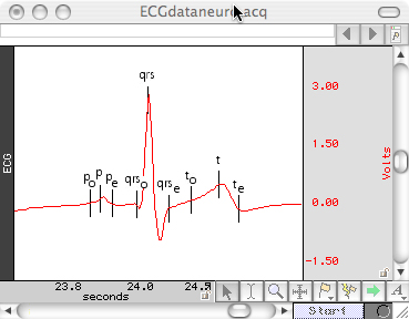 ECG100C ECG amplifier and AcqKnowledge automated ECG analysis