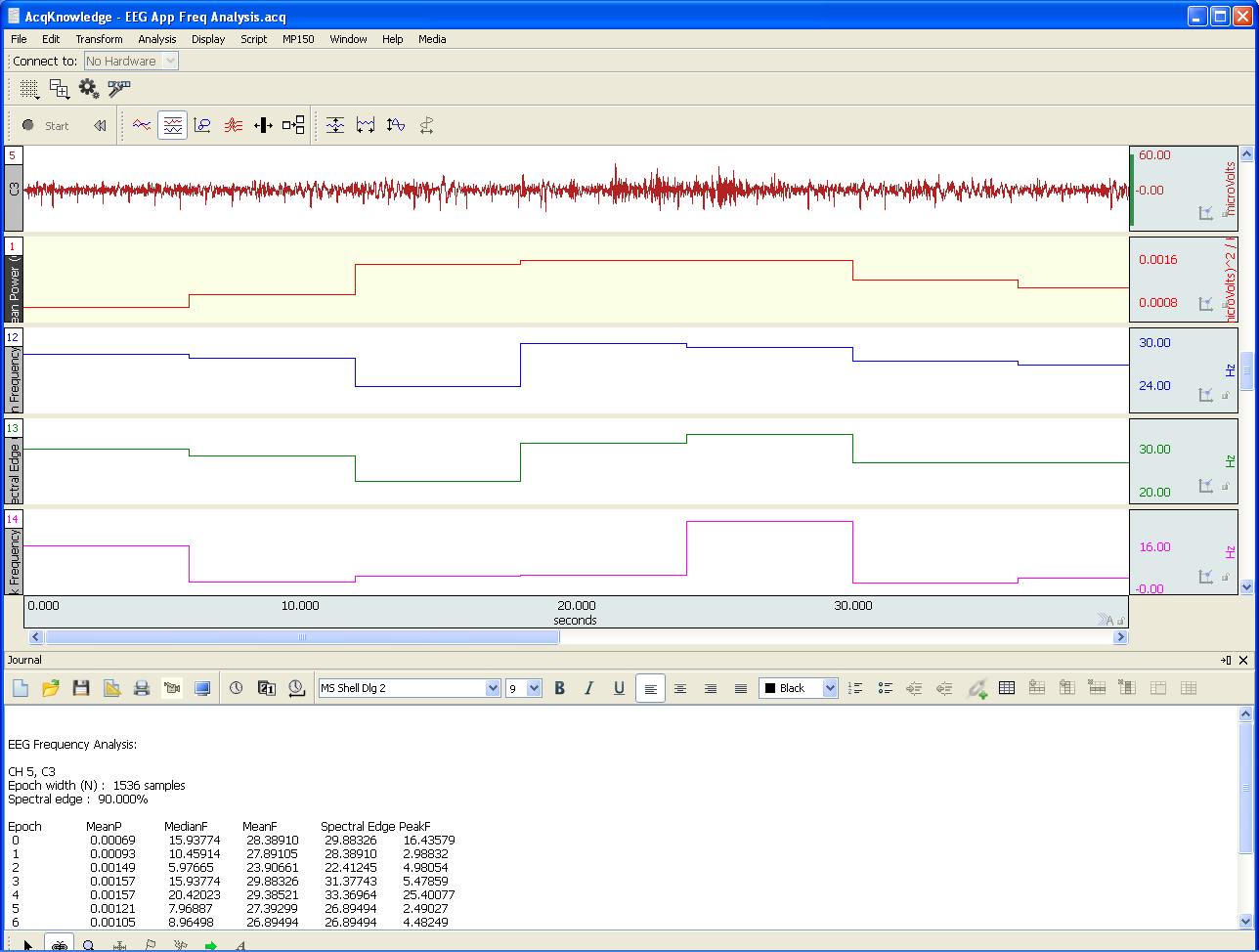 EEG, Frequency, Analysis, AcqKnowledge