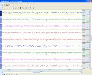 filtered EEG data