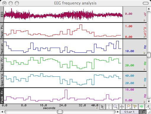 EEG100C EEG amplifier and frequency analysis using BIOPAC Acq;Knowledge software
