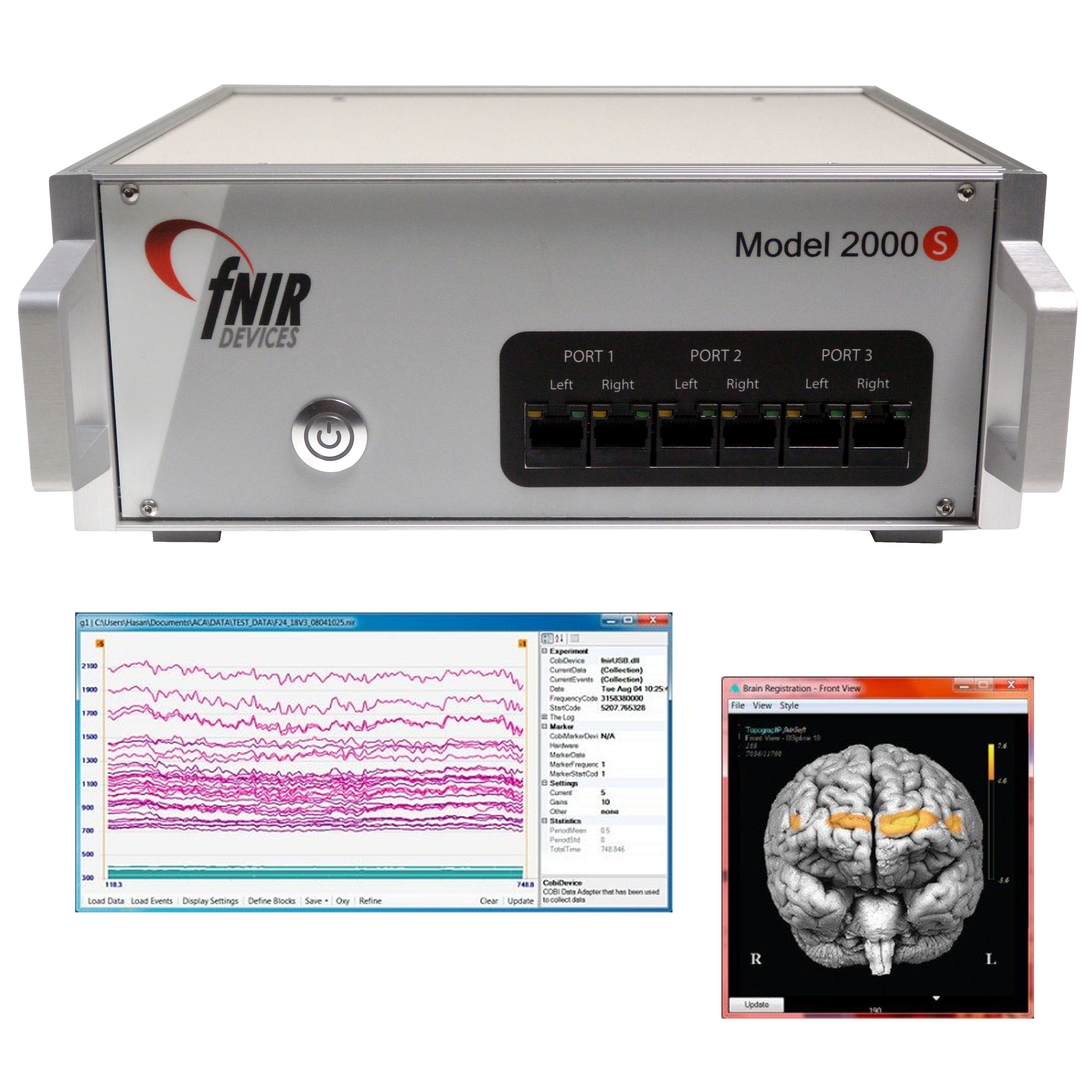 fNIRS Data and Stimulation System