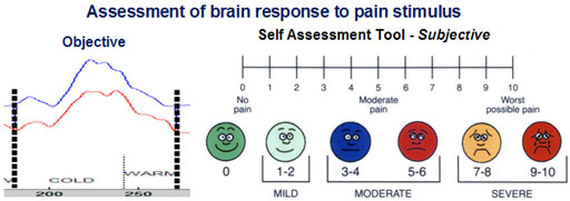 fNIR pain assessment