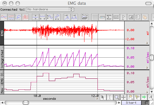Integrated EMG Data