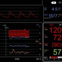 Noninvasive BP Amp with Hemodynamics